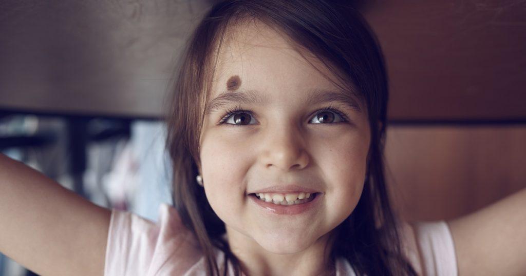 children and birthmarks